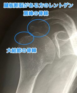 損傷 腱 板
